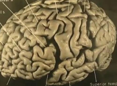 Images of アインシュタインの脳...